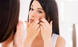 درمان لک های پوستی،درمان اکنه